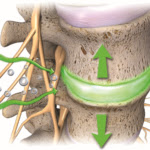 Spinal-decompression-mechanism